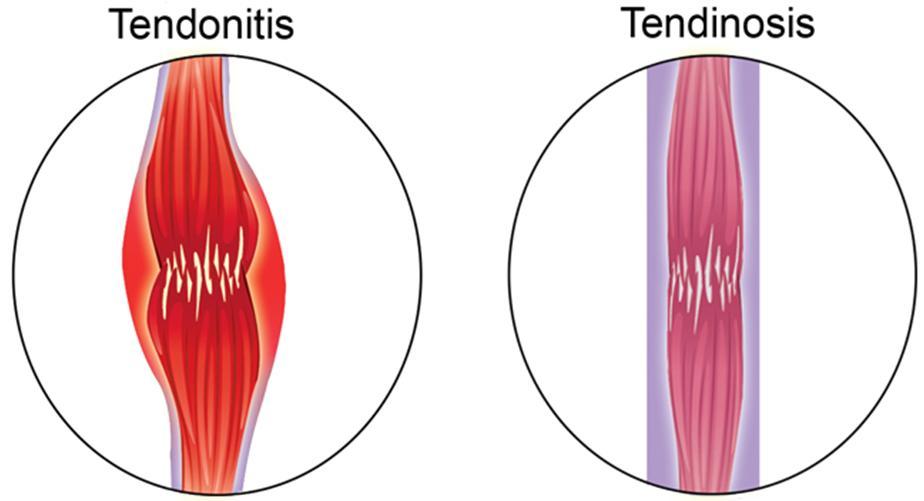 Tendonitis or Tendinosis?