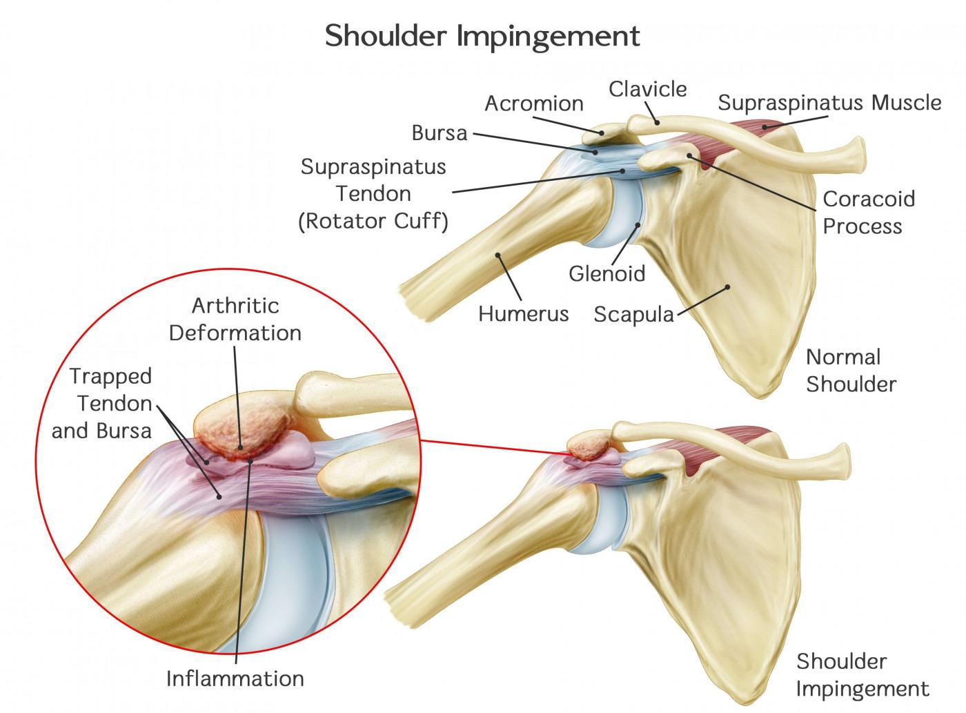 Physical Therapists Guide To Shoulder Impingement